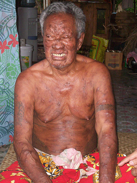 "This man suffered from leprosy for years, believing that there was no cure and that he was being ""punished"" by God. After a year of treatment, his appearance is vastly improved although he suffers from disabilities caused by nerve damage from leprosy."