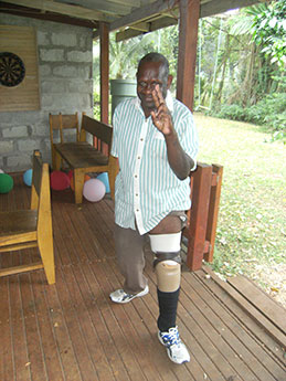 Japhet had to travel to Twomey Hospital in Fiji to be fitted with a prosthetic leg as there is no prosthetics technician or workshop in Vanuatu. Here he shows it off following a re-fit at the hospital in Santo.